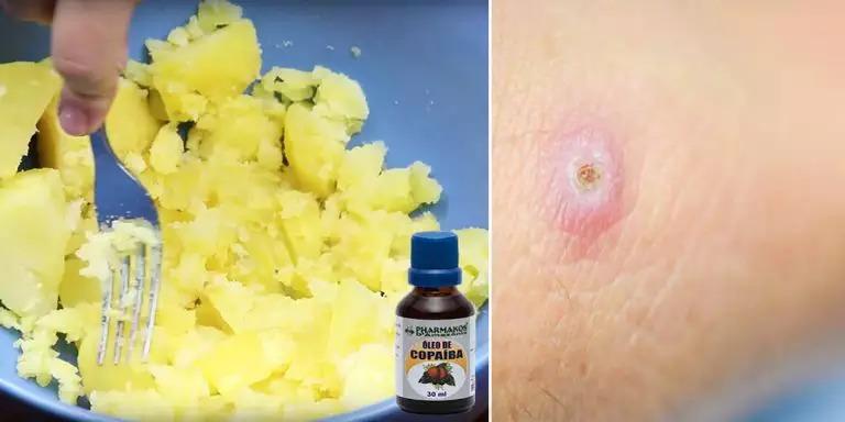 Cartof cu ulei de copaiba: rețetă de casă pentru tratarea fierberilor