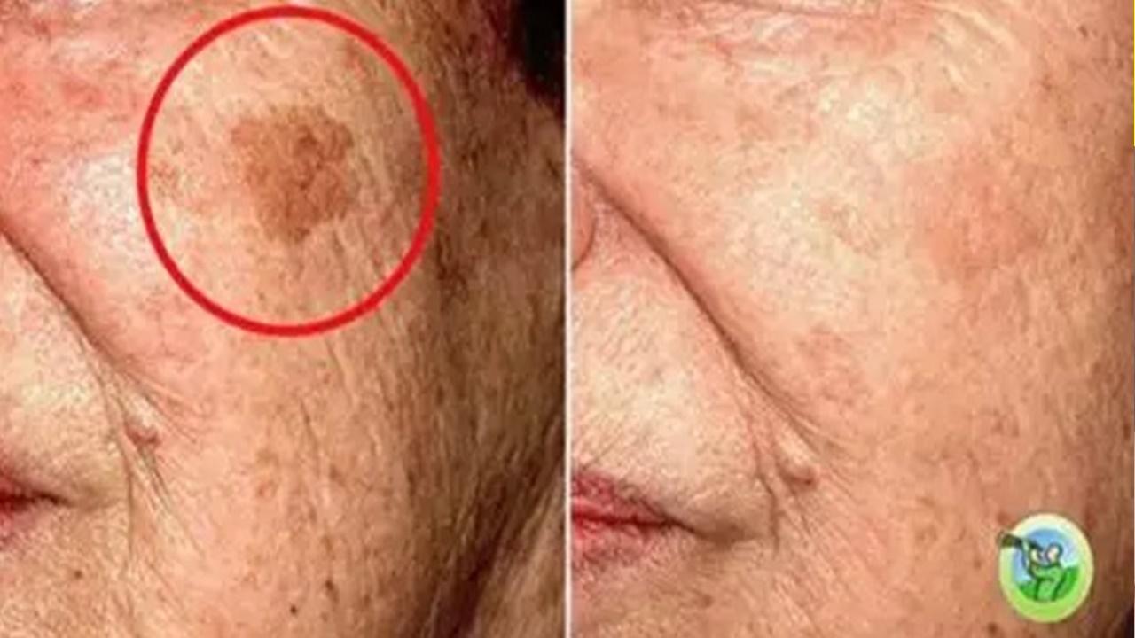 5 remedii casnice care vor elimina orice problemă a pielii de pe față!