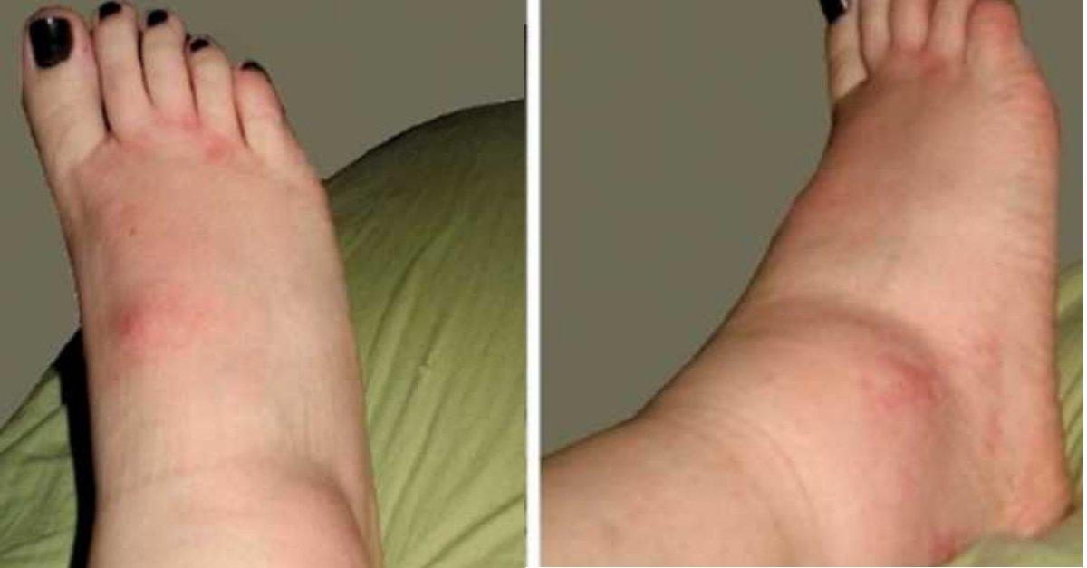 Picioarele pot prezenta semne de atac de cord, accident vascular cerebral și mai multe boli: testul la domiciliu indică riscul