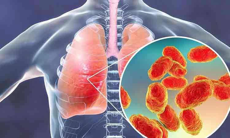"""Vitamina care ne fereste de pneumonii. Este principalul """"combustibil"""" al sistemului imunitar"""